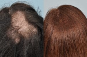 hair-transplant-testimonial-uk-patient-jan-2013