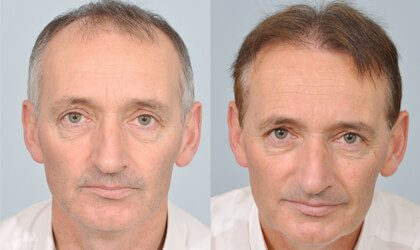 Patrick Nevin HRBR before after