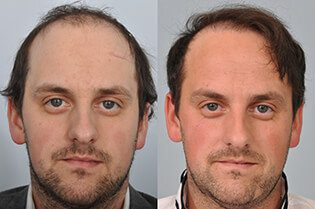 Louis-Ricardo-Blundell-HRBR-before-after