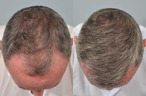 hair transplant 6 months post op before and after