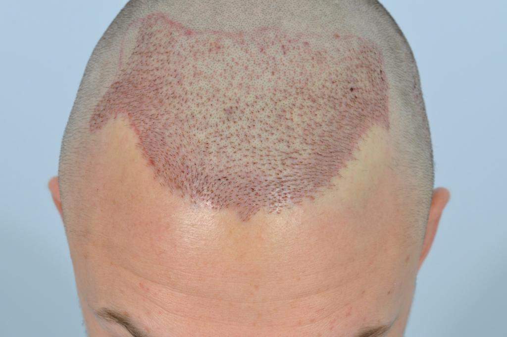 How a person should look immediately after a hair transplant
