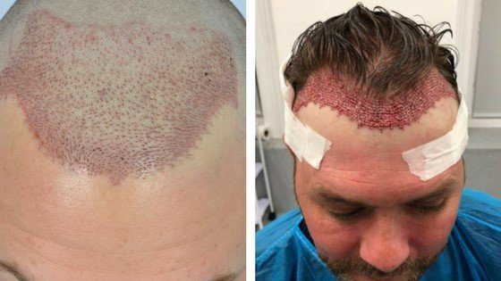 comparison of post hair transplant surgery images
