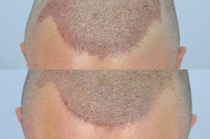 how a hair transplant should look immediately after and the day after surgery