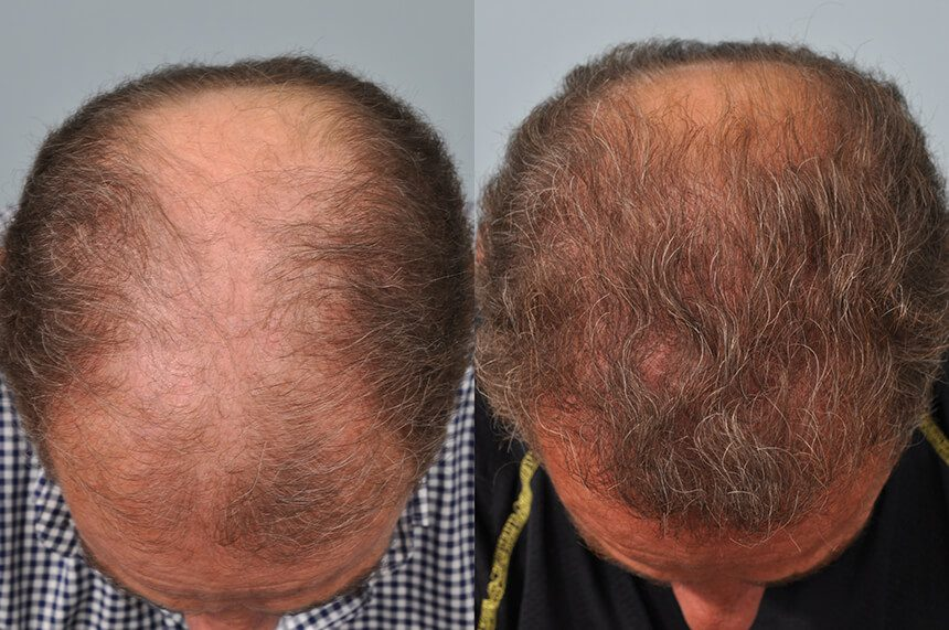 Sam Khalaf hair transplant one year later - crown