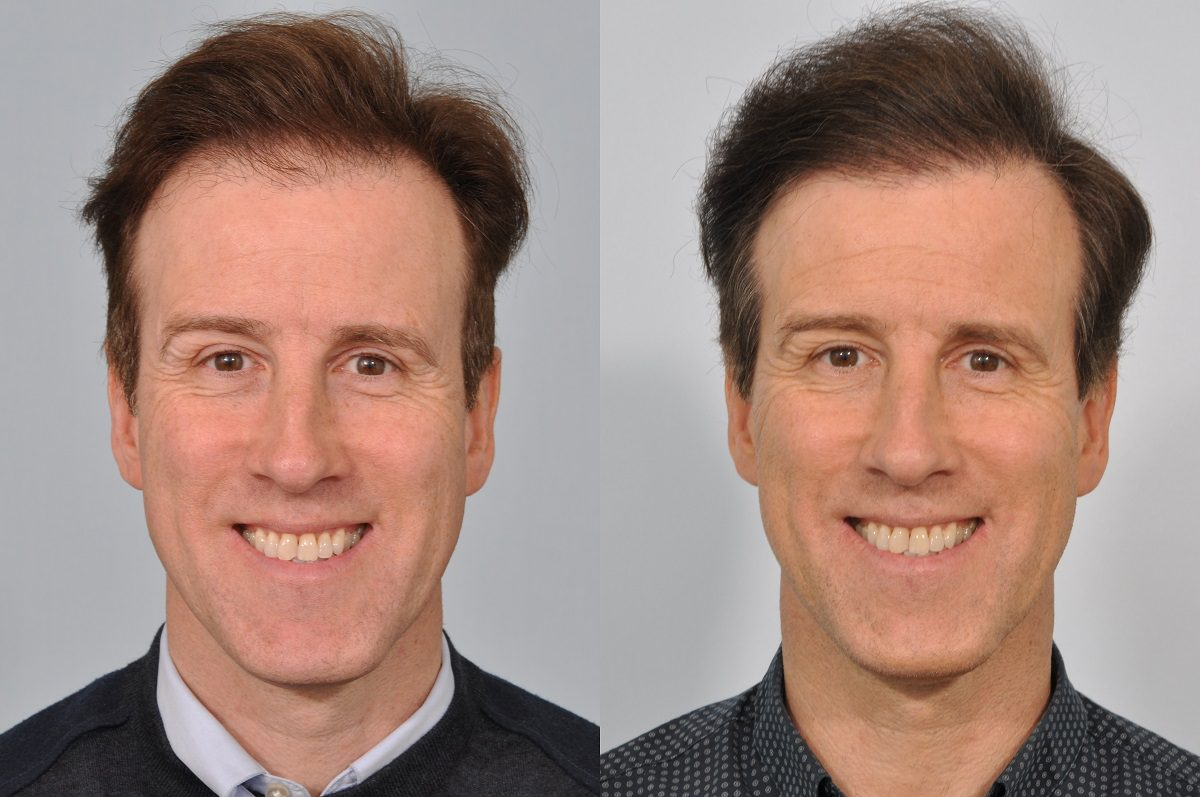Anton du Beke before and after hair transplant