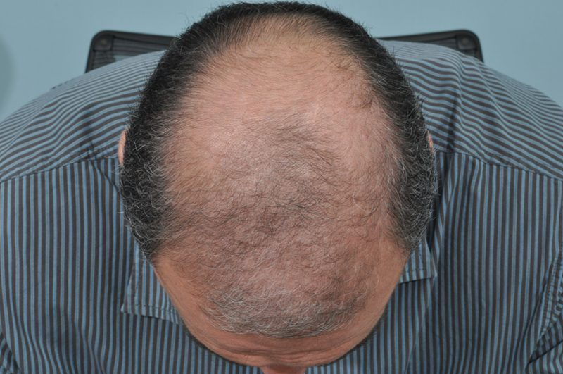 Before-10 Years Post Transplantation - Front