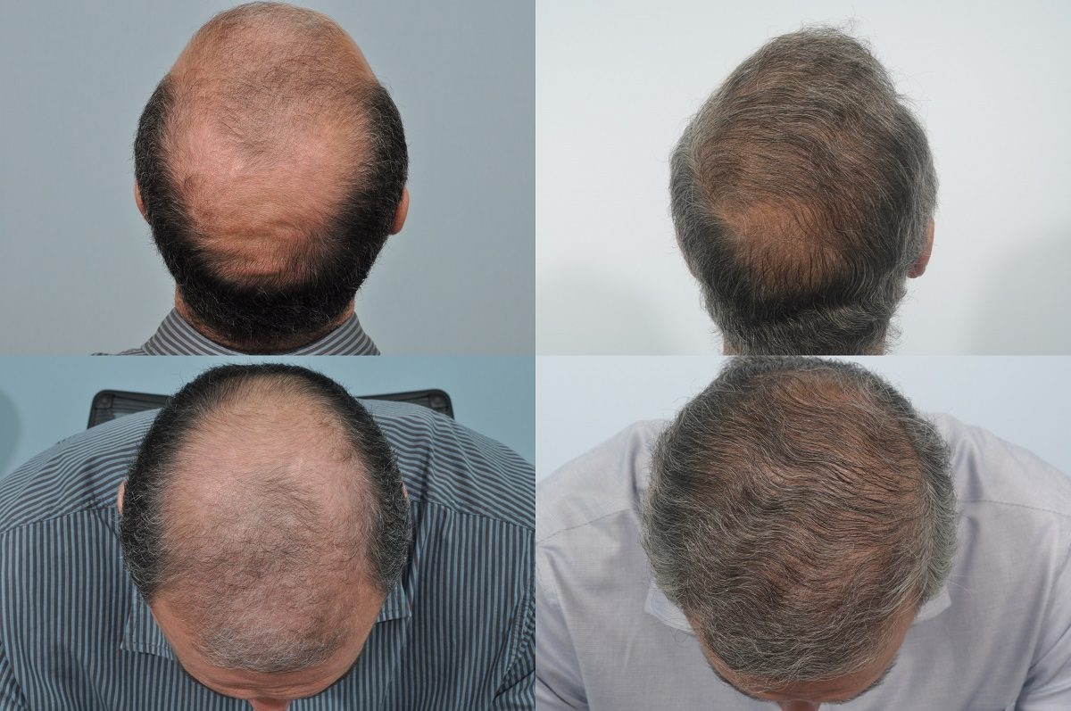 Before and after - 10 years post hair transplant